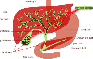 liver-gallstones